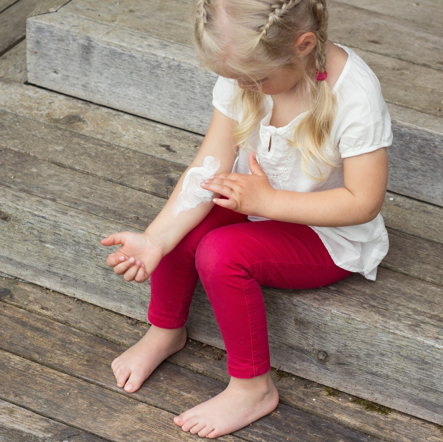 Girl applying cream on skin, eczema treatment.